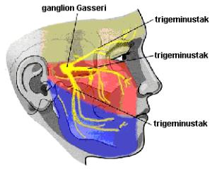 nervus trigeminus mogelijke oorzaak migraine