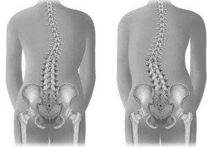 wat te doen tegen rugpijn in onderrug
