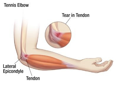 Tennis Elbow Cause Selftest And Treatment With 3 Exercises