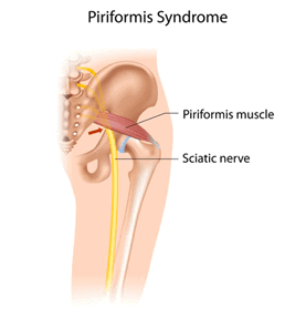 Piriformis syndrome causes signs and symptoms of sciatica which occurs due to compression of the sciatic nerve