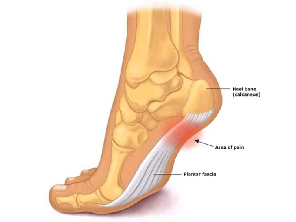 Plantar fasciitis treatment with 4 exercises for fast relief