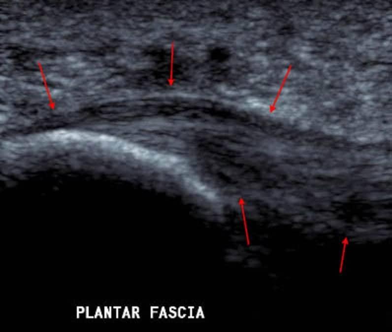 fascia plantaris echo