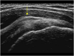 Shoulder Impingement Syndrome All Causes And Treatment