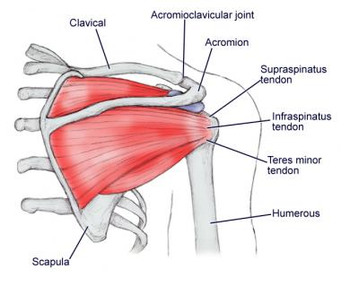 Shoulder Impingement Syndrome Treatment With 4 Exercises