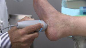 ultrasound plantar fasciitis