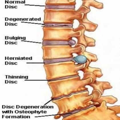 herniated disc treatment with 3 exercises to avoid surgery, Human Body