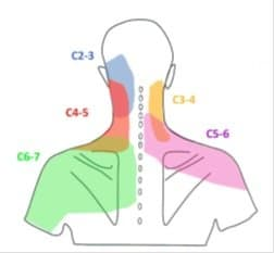 neck pain and headaches cause and treatment with 4 exercises