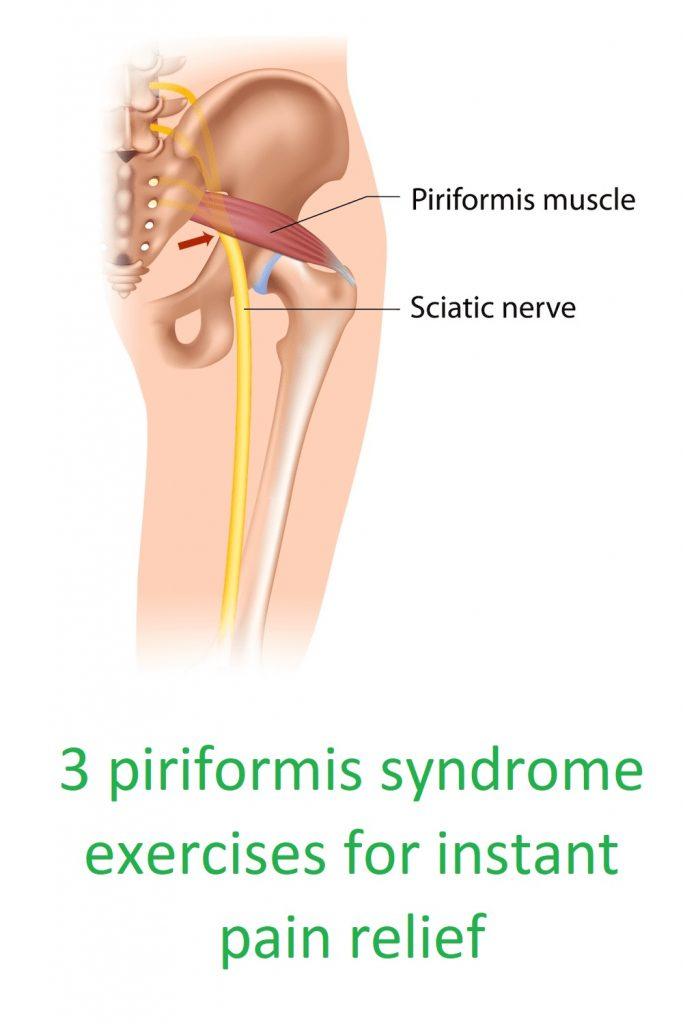 piriformis syndrome exercises